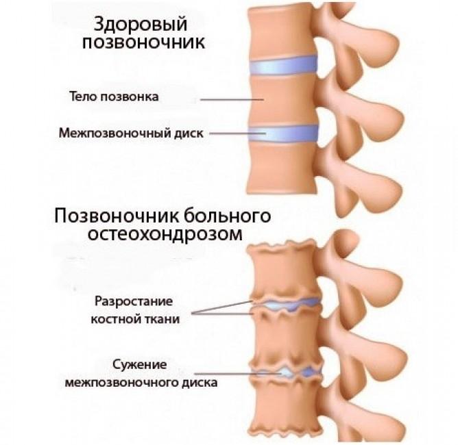 Медицина лечение хронического пиелонефрита