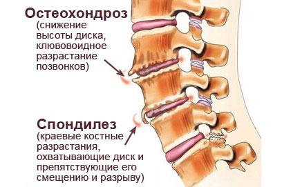 Спондилез позвоночника - симптомы и лечение в Казани