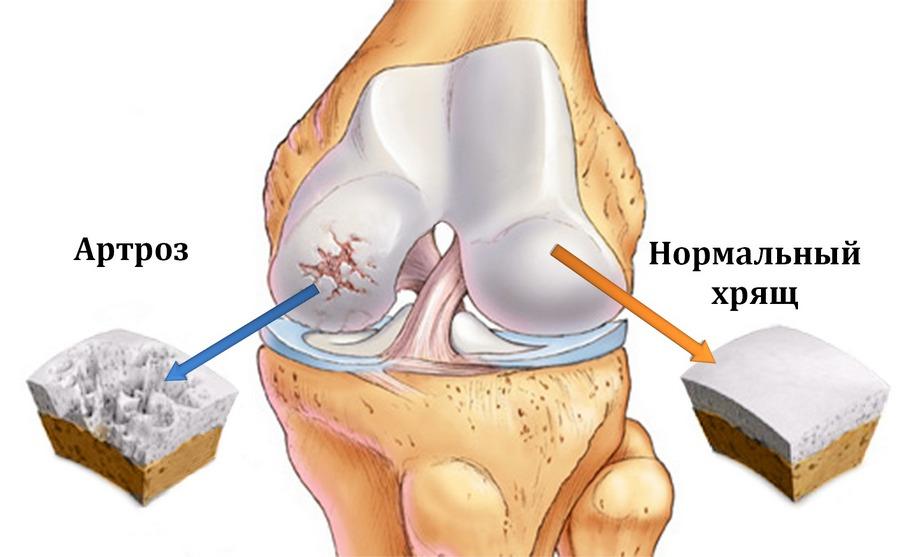 Артроз и артрит - боли в суставах, лечение и симптомы